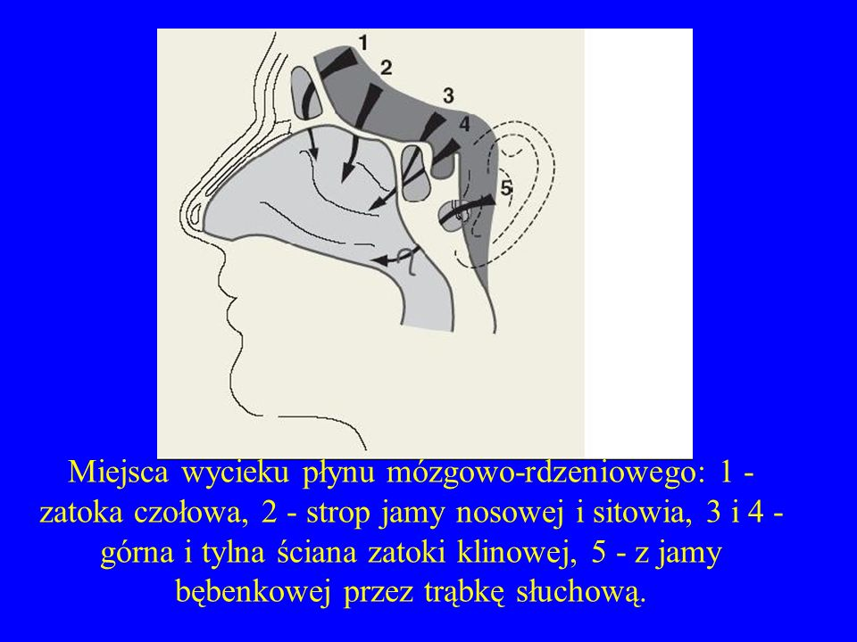Miejsca wycieku płynu mózgowo-rdzeniowego: 1 - zatoka czołowa, 2 - strop jamy nosowej i sitowia, 3 i 4 - górna i tylna ściana zatoki klinowej, 5 - z jamy bębenkowej przez trąbkę słuchową.