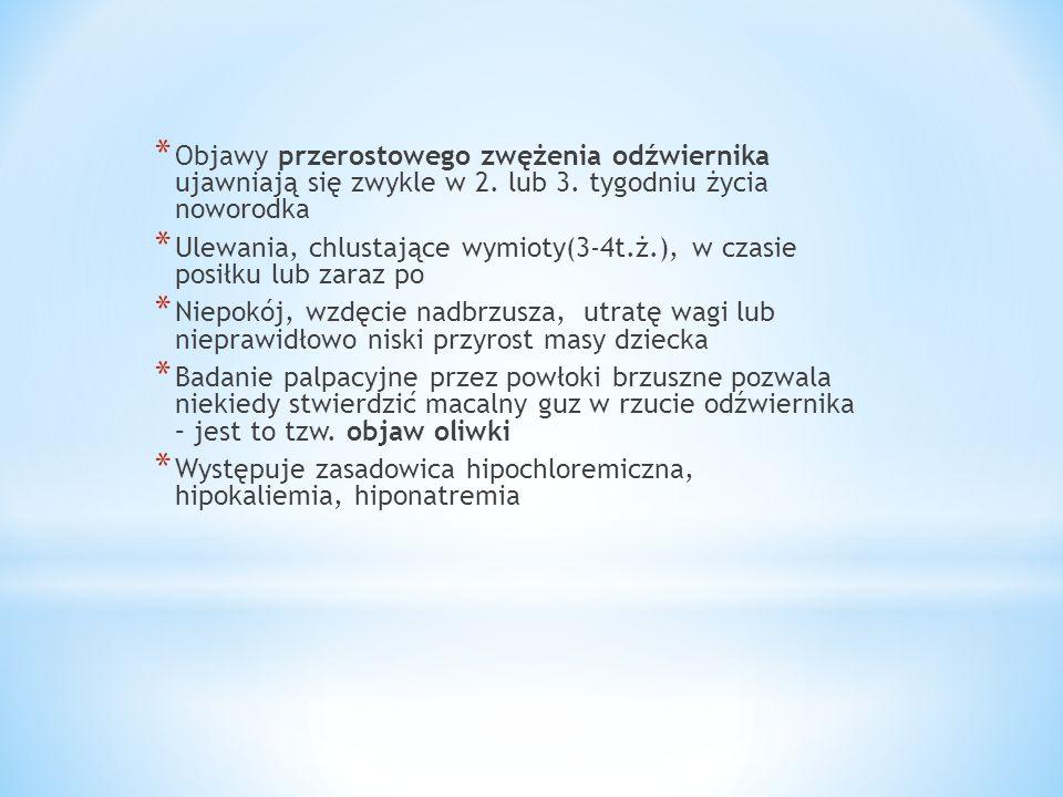 Objawy przerostowego zwężenia odźwiernika ujawniają się zwykle w 2