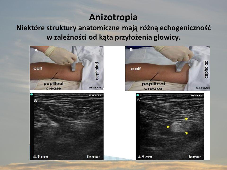 Anizotropia Niektóre struktury anatomiczne mają różną echogeniczność w zależności od kąta przyłożenia głowicy.