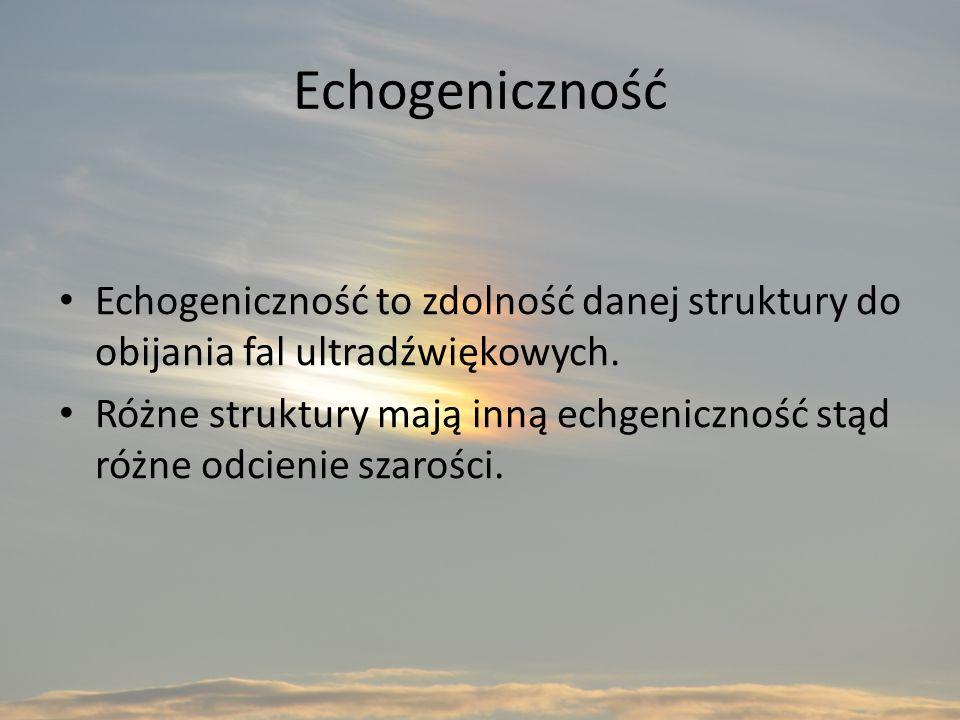 Echogeniczność Echogeniczność to zdolność danej struktury do obijania fal ultradźwiękowych.