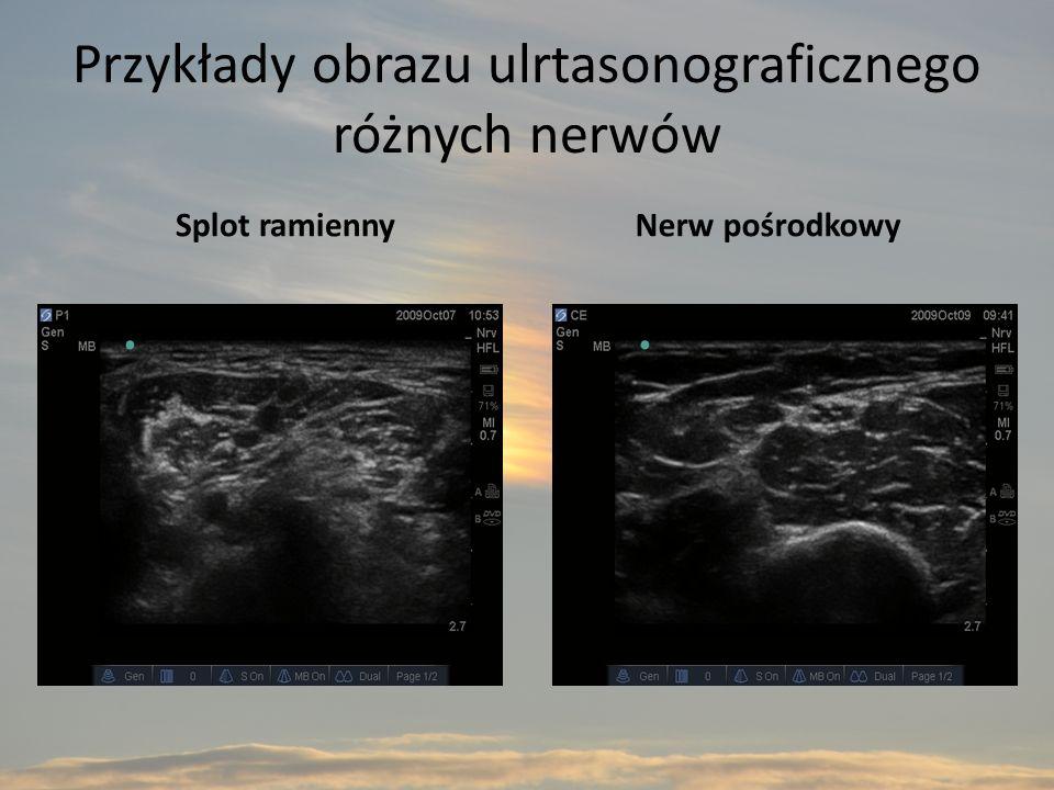 Przykłady obrazu ulrtasonograficznego różnych nerwów