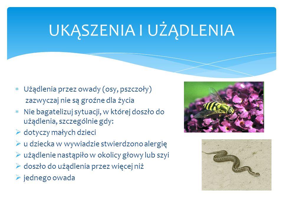 UKĄSZENIA I UŻĄDLENIA Użądlenia przez owady (osy, pszczoły)