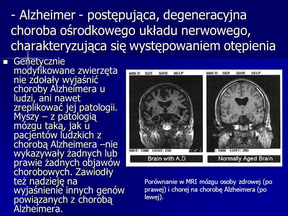 - Alzheimer - postępująca, degeneracyjna choroba ośrodkowego układu nerwowego, charakteryzująca się występowaniem otępienia