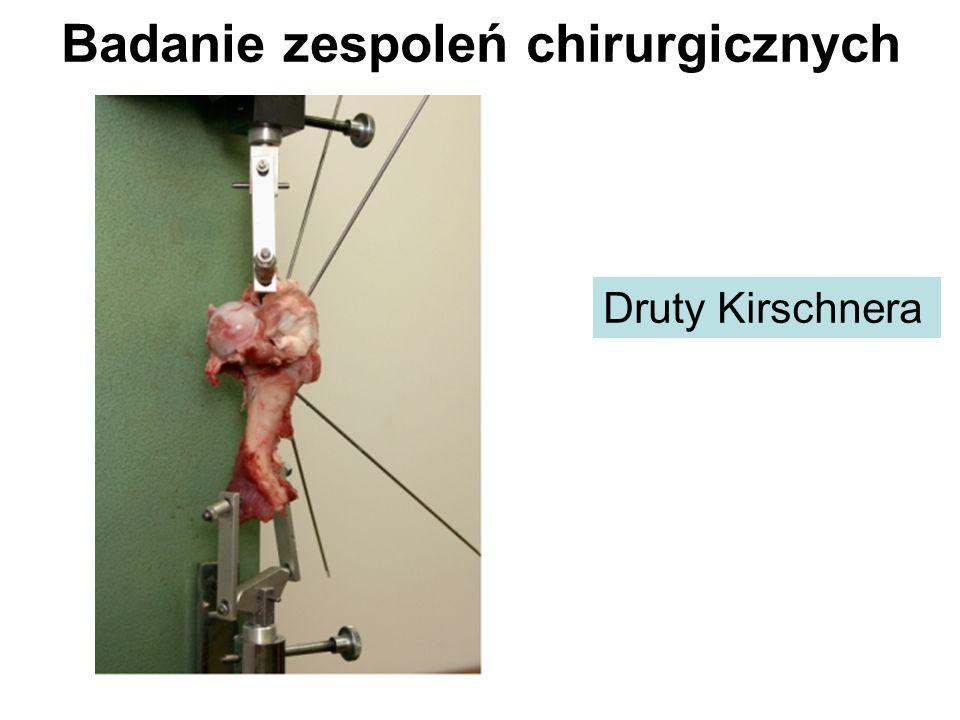 Badanie zespoleń chirurgicznych
