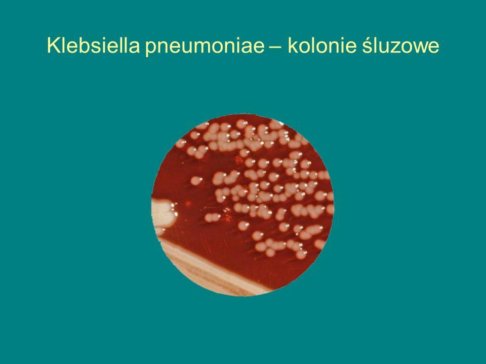 Klebsiella pneumoniae – kolonie śluzowe