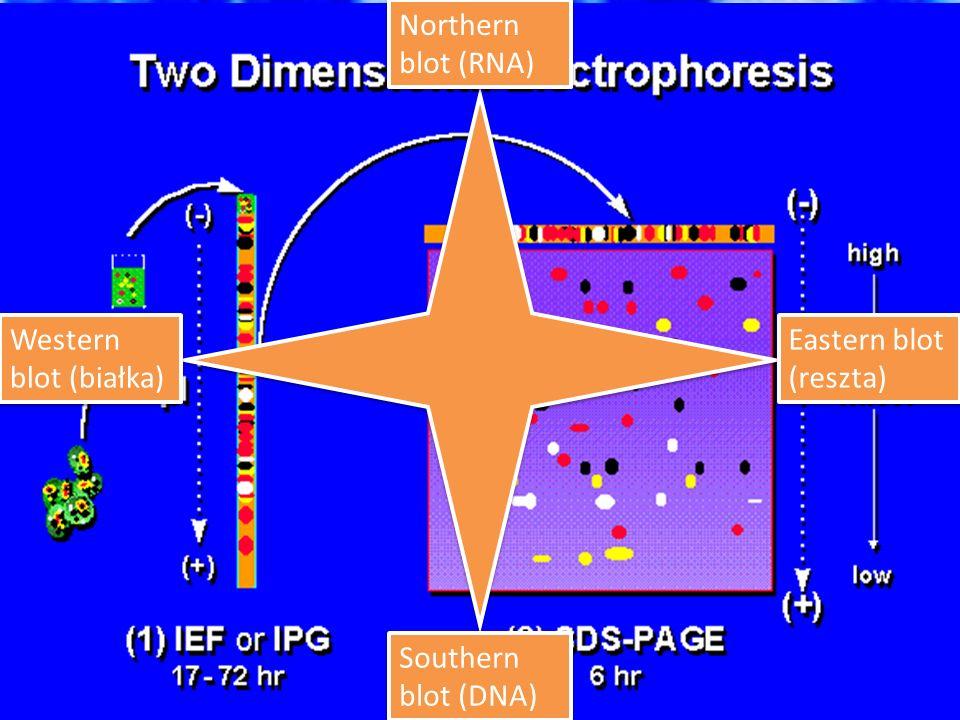 Elektroforeza! Kapilarna Żelowa (PAGE)