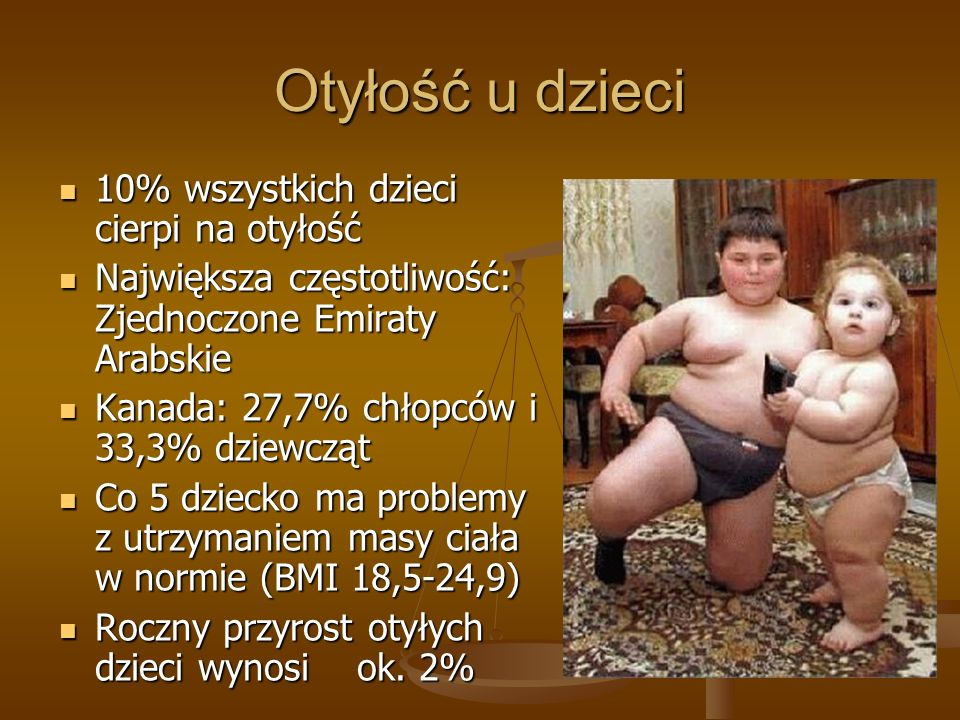 Otyłość u dzieci 10% wszystkich dzieci cierpi na otyłość