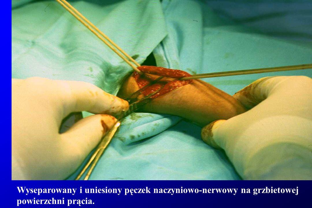 Wyseparowany pęczek naczyniowo-nerwowy na grzbietowej powierzchni prącia.