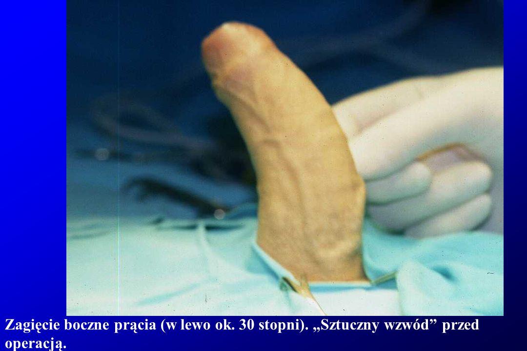"""Zagięcie boczne prącia (w lewo). """"Sztuczny wzwód przed operacją."""