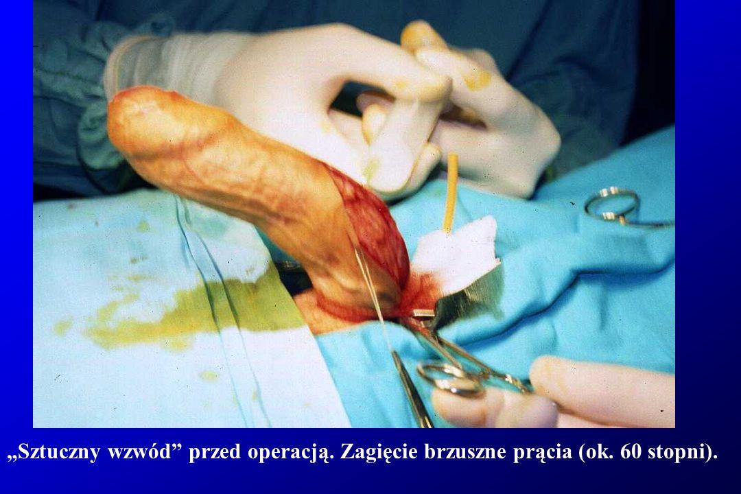 """""""Sztuczny wzwód przed operacją. Zagięcie brzuszne prącia."""