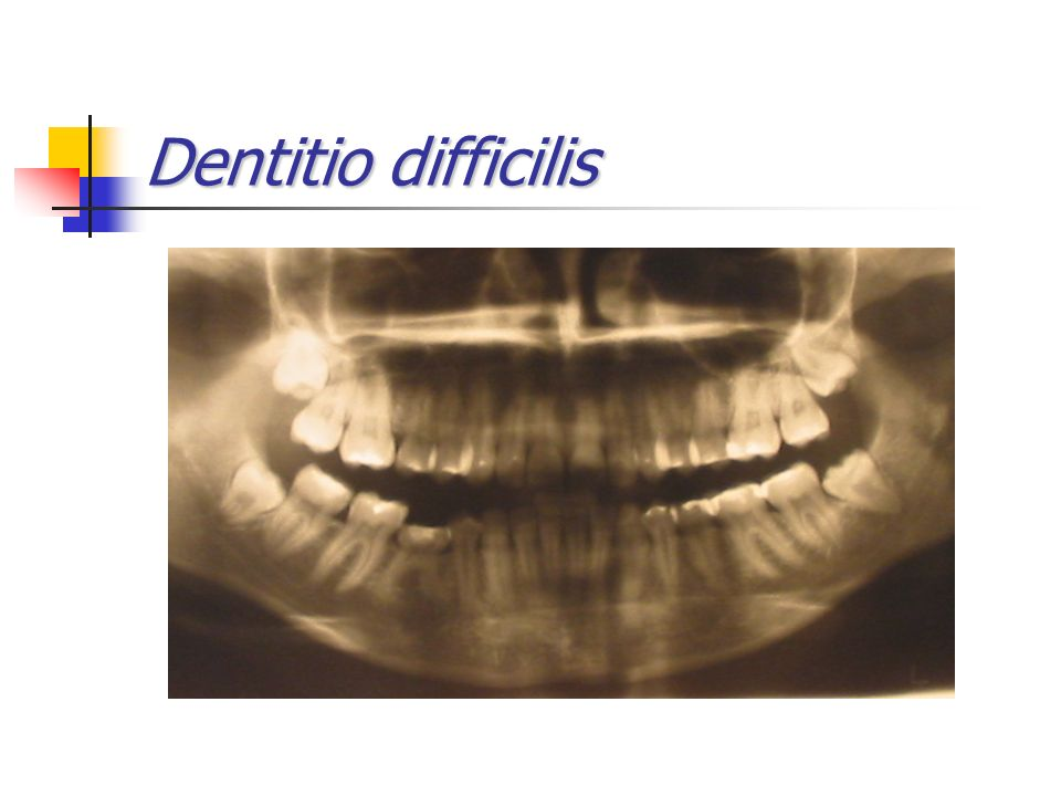 Dentitio difficilis