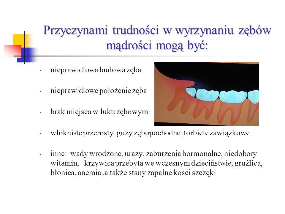 Przyczynami trudności w wyrzynaniu zębów mądrości mogą być: