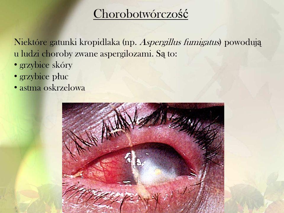Chorobotwórczość Niektóre gatunki kropidlaka (np. Aspergillus fumigatus) powodują u ludzi choroby zwane aspergilozami. Są to: