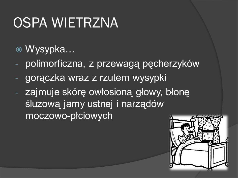 OSPA WIETRZNA Wysypka… polimorficzna, z przewagą pęcherzyków