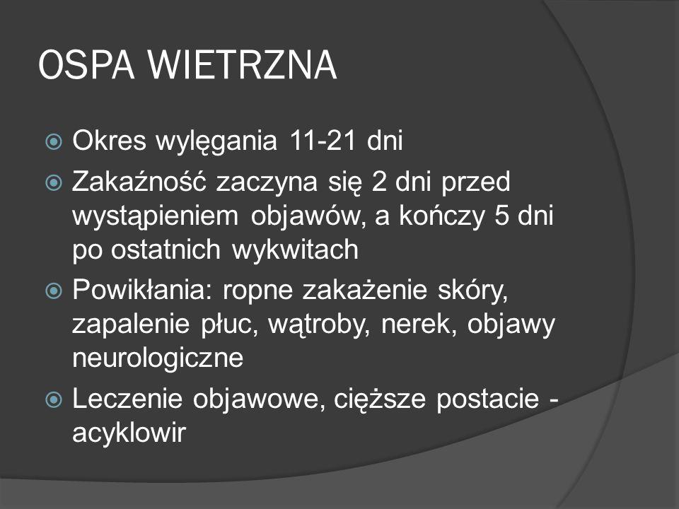 OSPA WIETRZNA Okres wylęgania 11-21 dni
