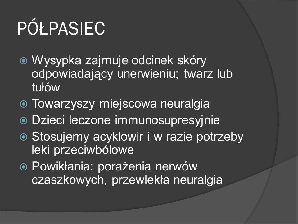 PÓŁPASIEC Wysypka zajmuje odcinek skóry odpowiadający unerwieniu; twarz lub tułów. Towarzyszy miejscowa neuralgia.