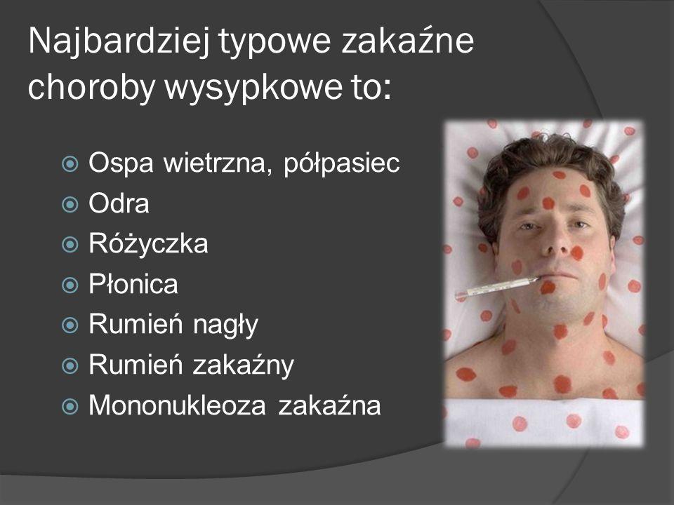 Najbardziej typowe zakaźne choroby wysypkowe to: