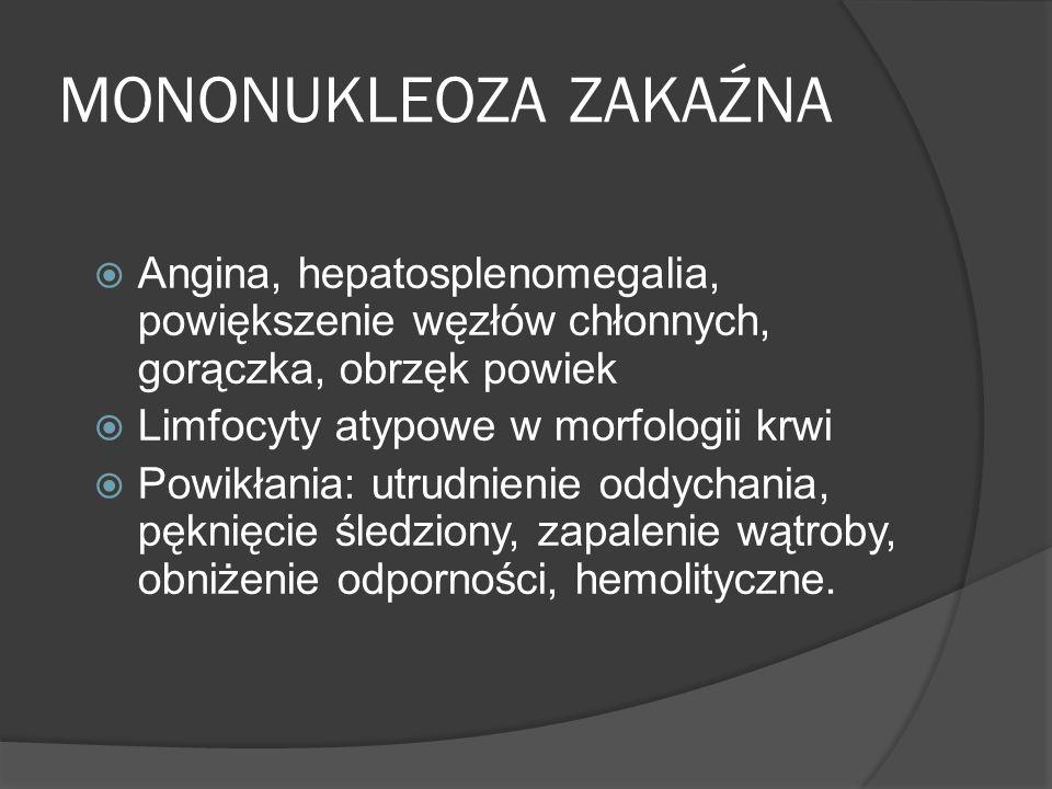 MONONUKLEOZA ZAKAŹNA Angina, hepatosplenomegalia, powiększenie węzłów chłonnych, gorączka, obrzęk powiek.