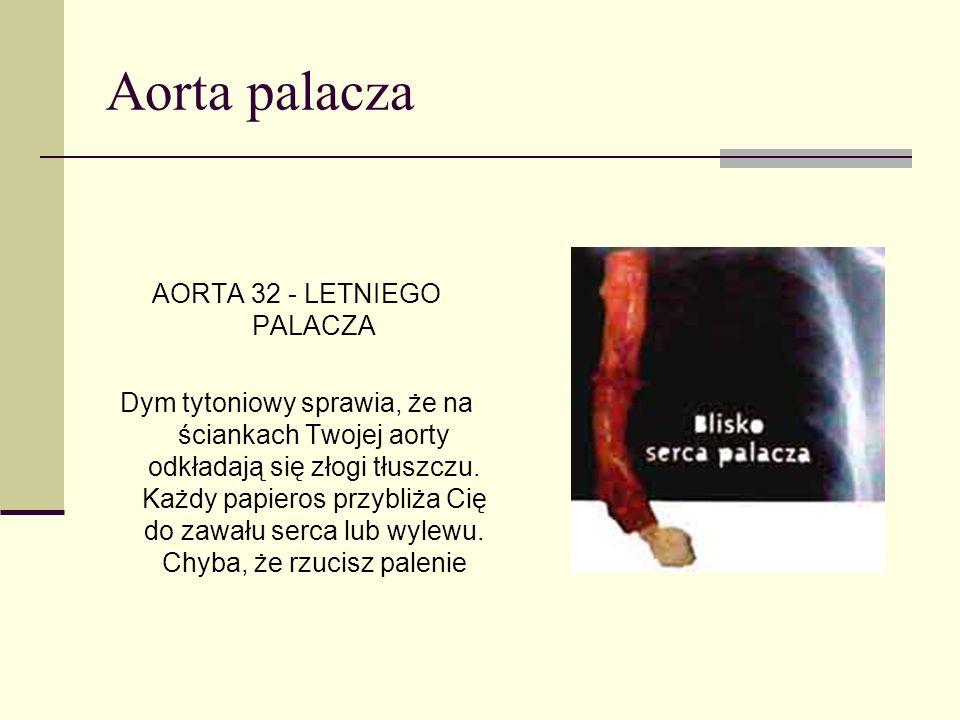 AORTA 32 - LETNIEGO PALACZA