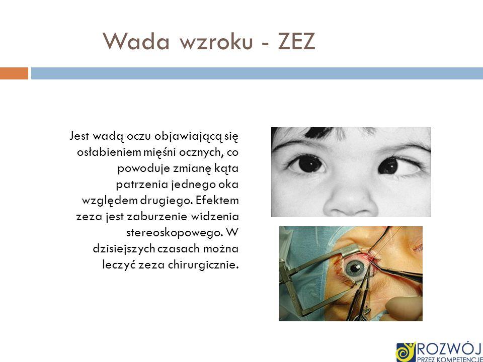 Wada wzroku - ZEZ