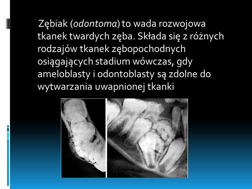 Zębiak (odontoma) to wada rozwojowa tkanek twardych zęba