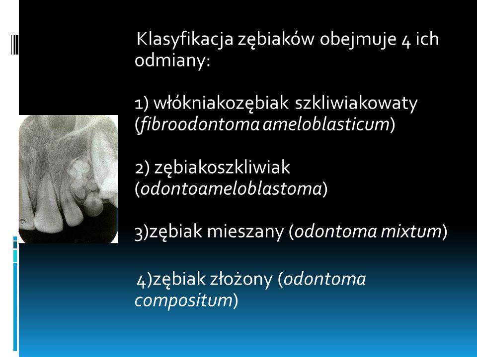 Klasyfikacja zębiaków obejmuje 4 ich odmiany: 1) włókniakozębiak szkliwiakowaty (fibroodontoma ameloblasticum) 2) zębiakoszkliwiak (odontoameloblastoma) 3)zębiak mieszany (odontoma mixtum) 4)zębiak złożony (odontoma compositum)