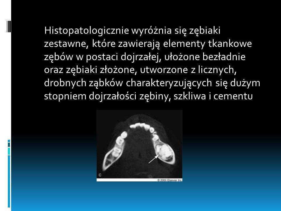 Histopatologicznie wyróżnia się zębiaki zestawne, które zawierają elementy tkankowe zębów w postaci dojrzałej, ułożone bezładnie oraz zębiaki złożone, utworzone z licznych, drobnych ząbków charakteryzujących się dużym stopniem dojrzałości zębiny, szkliwa i cementu