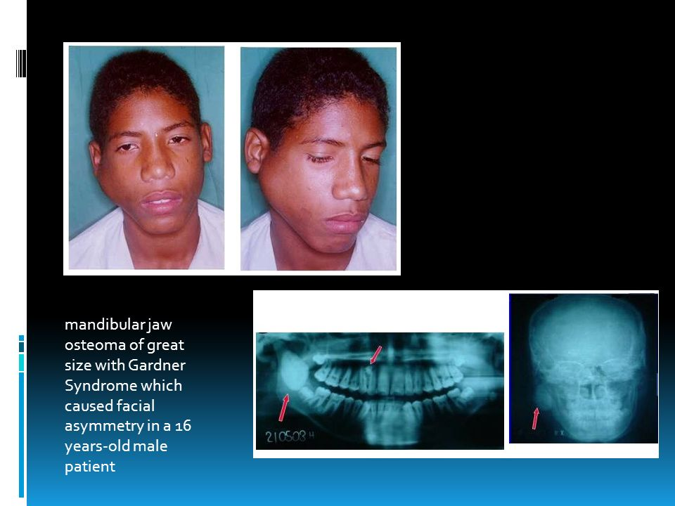 mandibular jaw osteoma of great size with Gardner Syndrome which caused facial asymmetry in a 16 years-old male patient