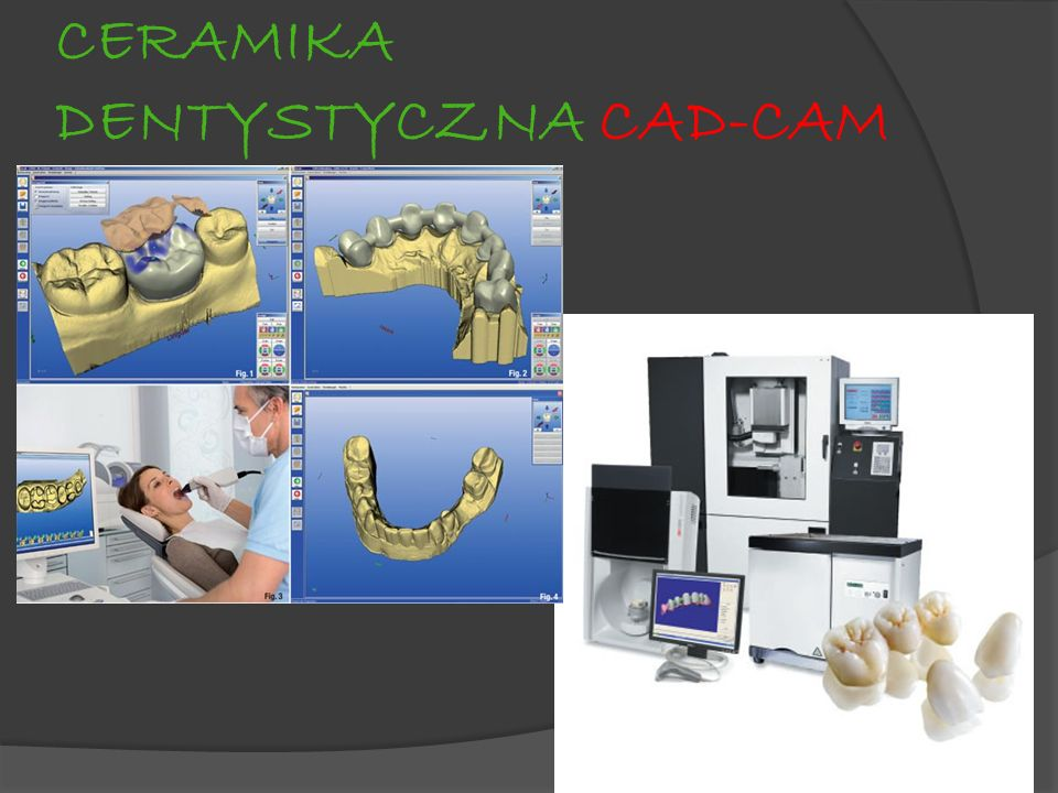 CERAMIKA DENTYSTYCZNA CAD-CAM