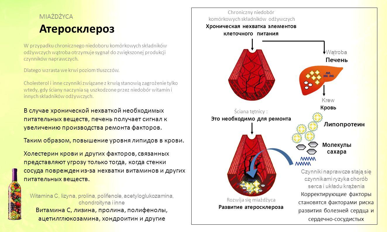 Атеросклероз MIAŻDŻYCA Печень