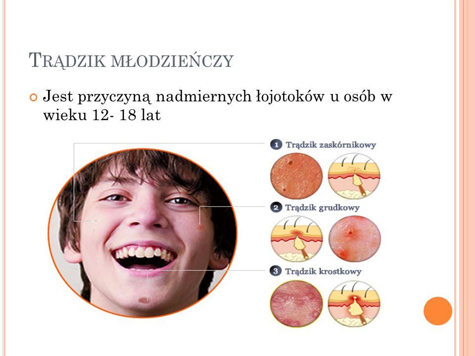 Trądzik młodzieńczy Jest przyczyną nadmiernych łojotoków u osób w wieku 12- 18 lat