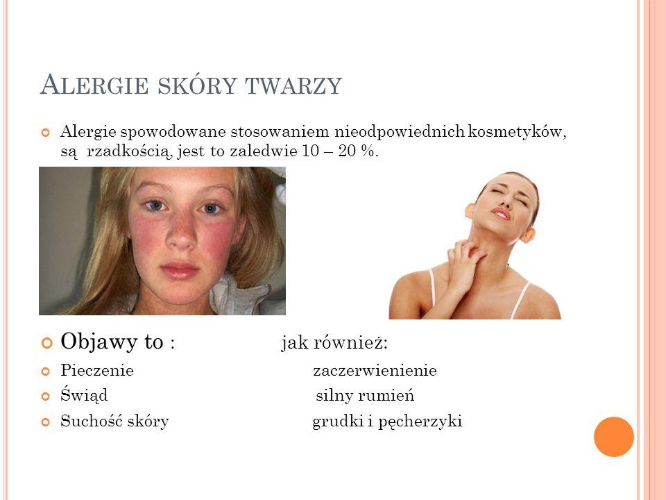 Alergie skóry twarzy Objawy to : jak również: