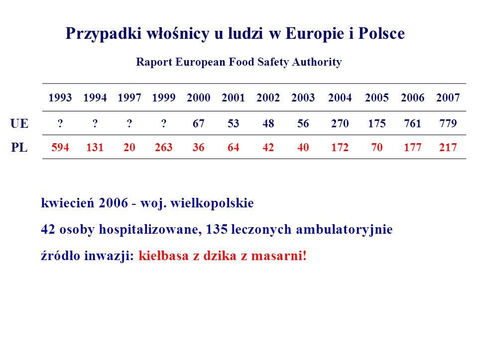Przypadki włośnicy u ludzi w Europie i Polsce