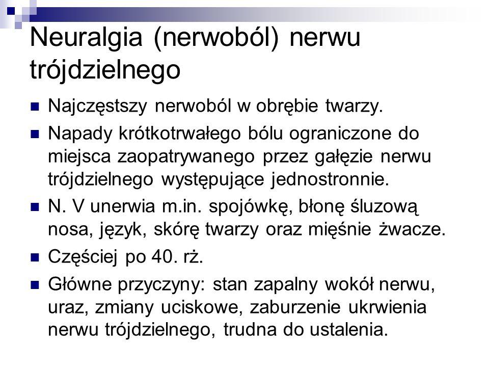 Neuralgia (nerwoból) nerwu trójdzielnego