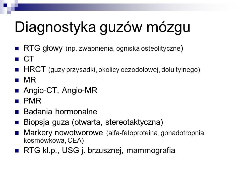 Diagnostyka guzów mózgu