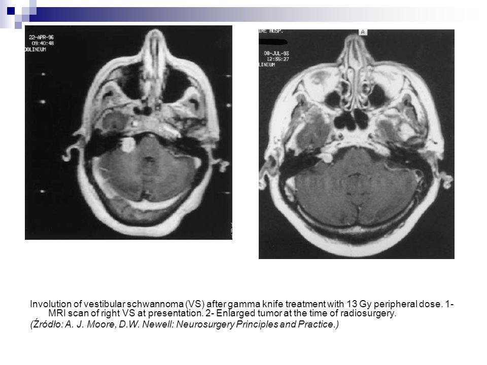 Involution of vestibular schwannoma (VS) after gamma knife treatment with 13 Gy peripheral dose. 1- MRI scan of right VS at presentation. 2- Enlarged tumor at the time of radiosurgery.