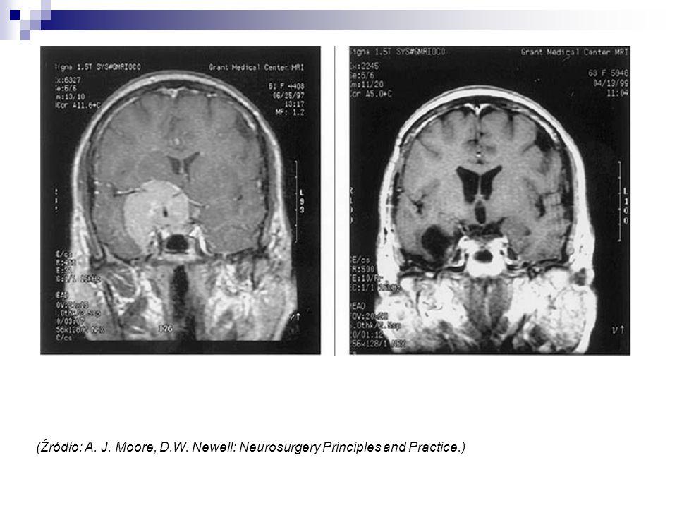 (Źródło: A. J. Moore, D.W. Newell: Neurosurgery Principles and Practice.)