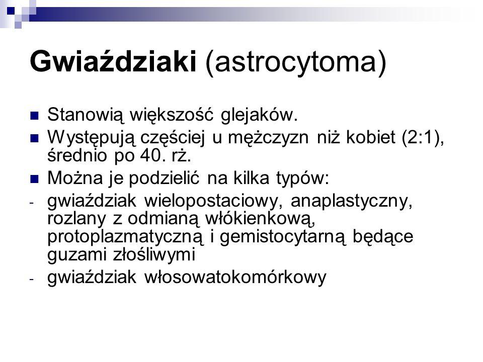Gwiaździaki (astrocytoma)