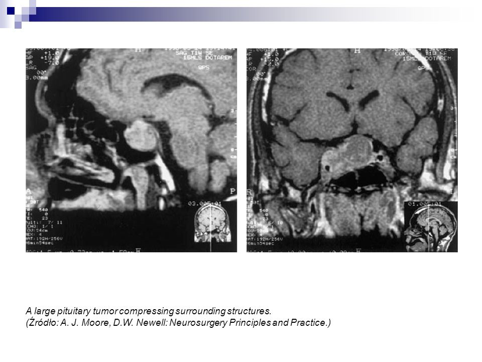 A large pituitary tumor compressing surrounding structures.