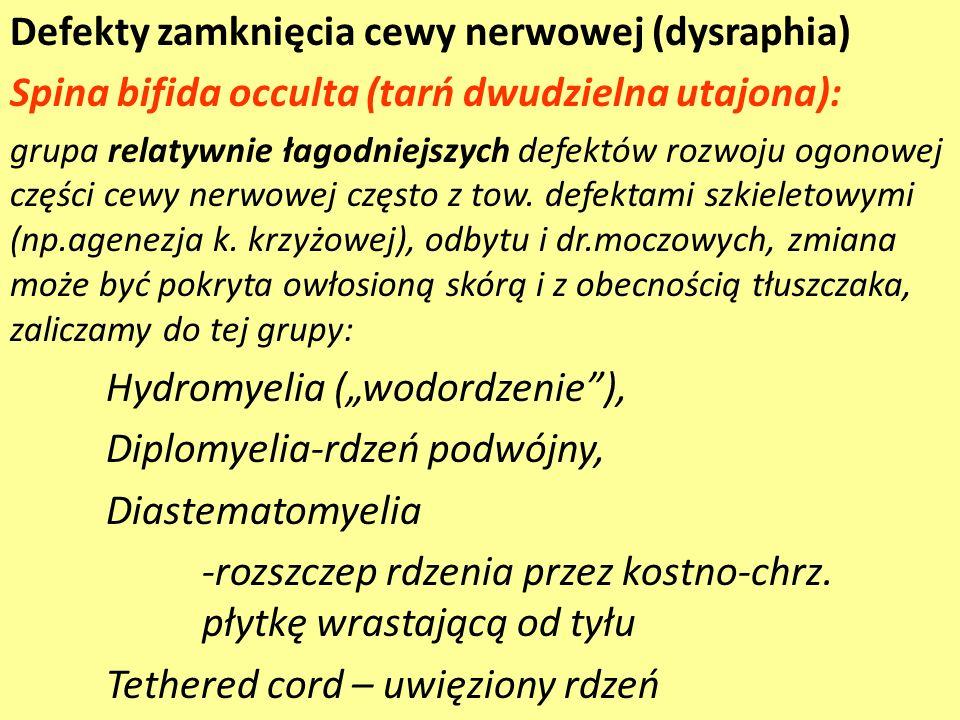 Defekty zamknięcia cewy nerwowej (dysraphia)