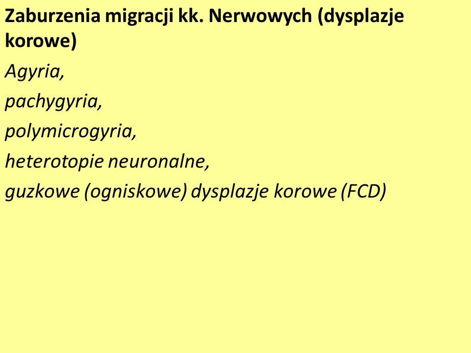 Zaburzenia migracji kk. Nerwowych (dysplazje korowe)