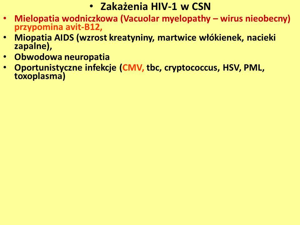 Zakażenia HIV-1 w CSN Mielopatia wodniczkowa (Vacuolar myelopathy – wirus nieobecny) przypomina avit-B12,