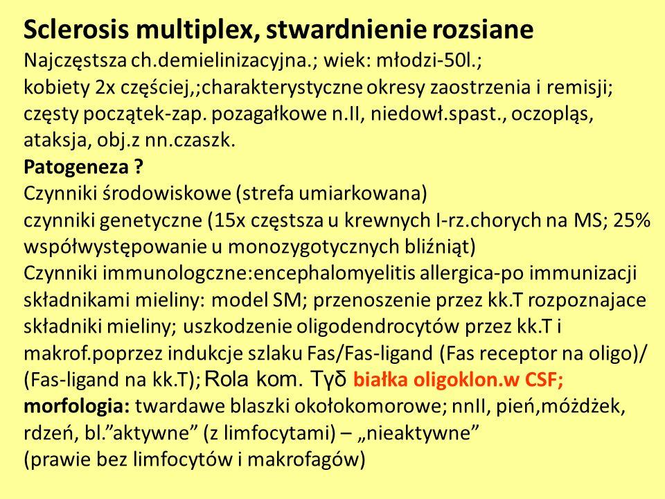 Sclerosis multiplex, stwardnienie rozsiane Najczęstsza ch