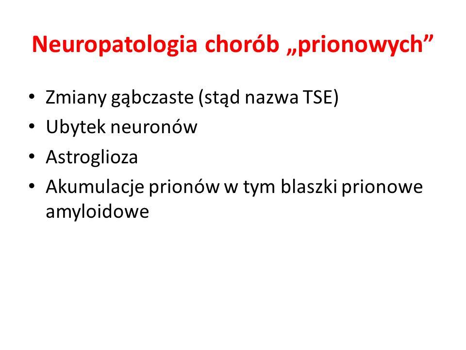 """Neuropatologia chorób """"prionowych"""