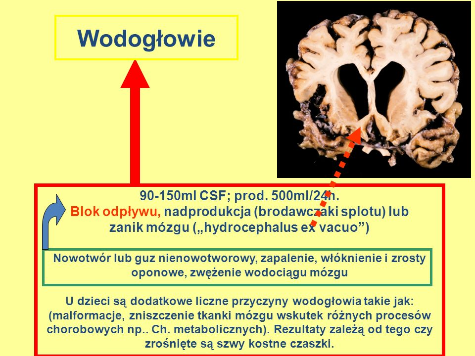 Wodogłowie 90-150ml CSF; prod. 500ml/24h.