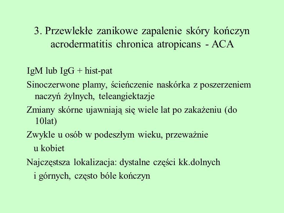 3. Przewlekłe zanikowe zapalenie skóry kończyn acrodermatitis chronica atropicans - ACA