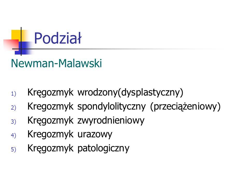 Podział Newman-Malawski Kręgozmyk wrodzony(dysplastyczny)