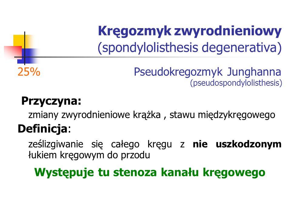 Kręgozmyk zwyrodnieniowy (spondylolisthesis degenerativa)
