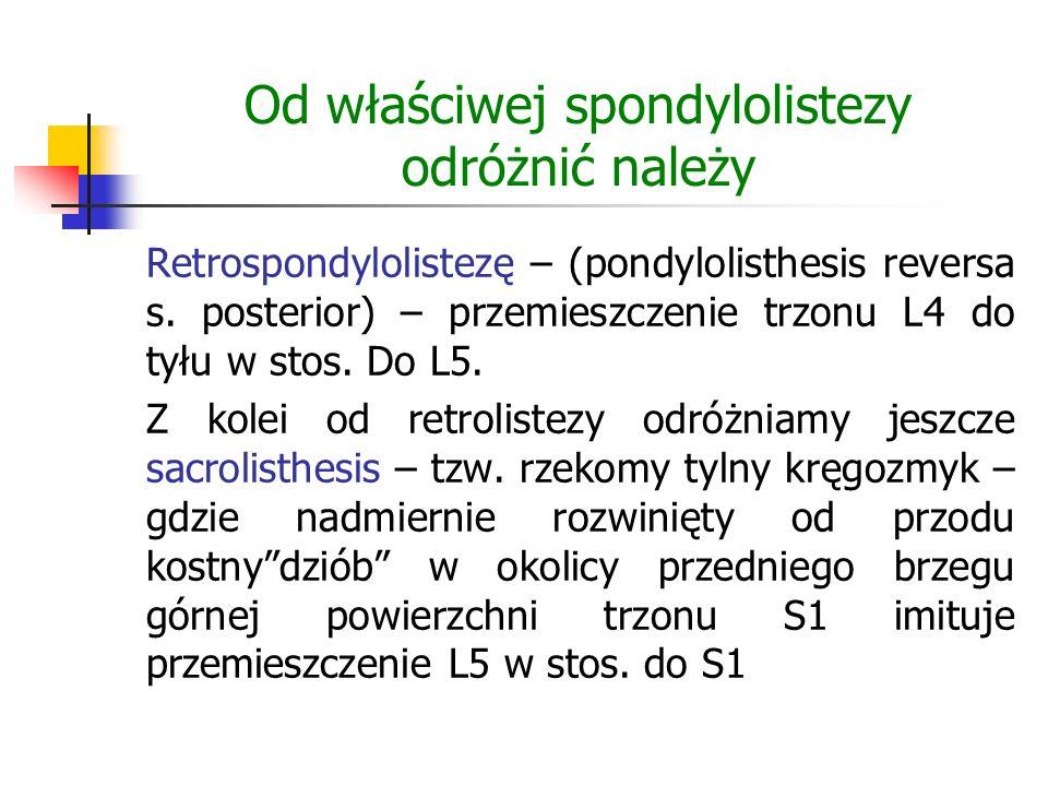 Od właściwej spondylolistezy odróżnić należy