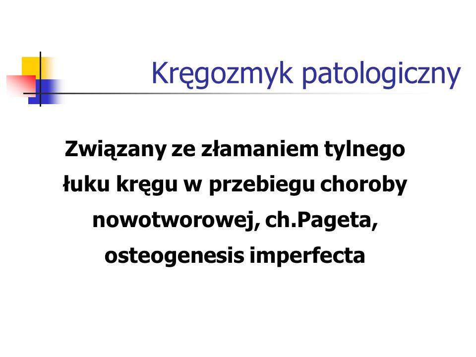 Kręgozmyk patologiczny
